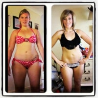 HCG Diet Before and After showing fastg weight loss - Bathing Suit